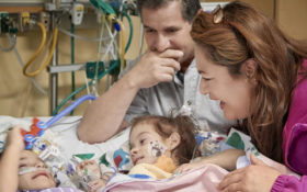 Conjoined twins meet for first time since separation