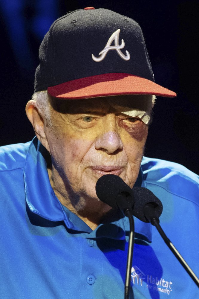 Photo Jimmy Carter's suffers black eye after falling in ...